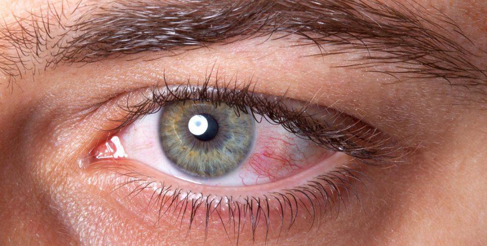 For Eye Care