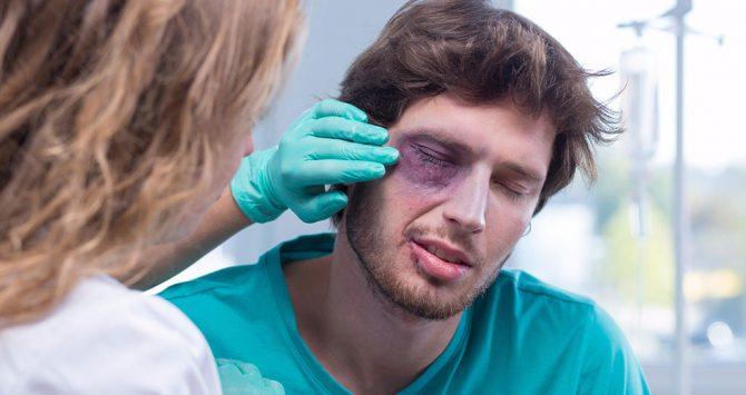 As principais lesões oculares causadas em decorrência de acidentes